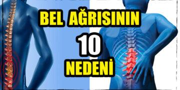 Bel ağrısının 10 nedeni 2