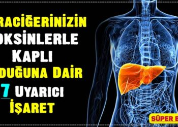 Karaciğerinizin Toksinlerle Kaplı Olduğuna Dair 7 Uyarıcı İşaret 3