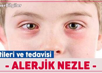 Alerjik nezle - Belirtileri ve Tedavisi 1