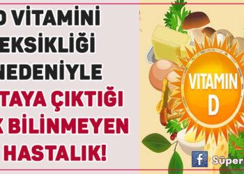 D vitamini eksikliği nedeniyle ortaya çıktığı pek bilinmeyen 7 hastalık! 1