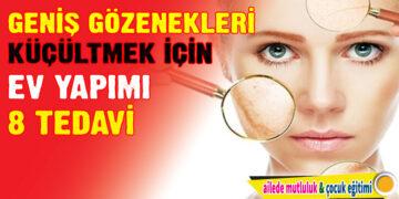 Geniş Gözenekleri Küçültmek için Ev Yapımı 8 Tedavi 1