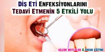Diş Eti Enfeksiyonlarını Tedavi Etmenin 5 Etkili Yolu 1