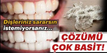 Dişlerinizsararsın istemiyorsanız... 3