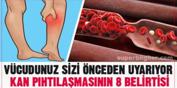 Vücudunuz sizi önceden uyarıyor – Kan pıhtılaşmasının 8 belirtisi! 11
