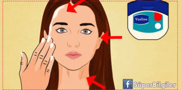 Cildinizden saç boyasını çıkarmanın doğal yöntemleri! 6