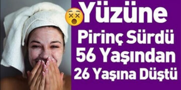 Genç Kadın Yüzüne Pirinç Sürdükten Sonra Tanınmaz Hale Geldi 2
