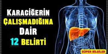 Karaciğerin Çalışmadığına Dair 12 Belirti 2