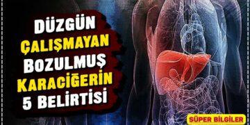 Düzgün Çalışmayan Bozulmuş Karaciğerin 5 Belirtisi 2
