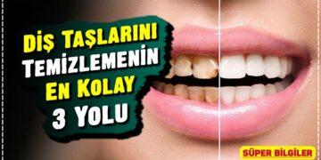 Diş Taşlarını Temizlemenin En Kolay 3 Yolu 2
