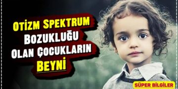Otizm Spektrum Bozukluğu Olan Çocukların Beyni 2