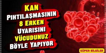 Kan Pıhtılaşmasının 8 Erken Uyarısını Vücudunuz Böyle Yapıyor 2