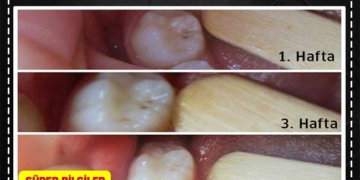 Çürük Dişlerin Kendiliğinden İyileştiğinin İspatı 2