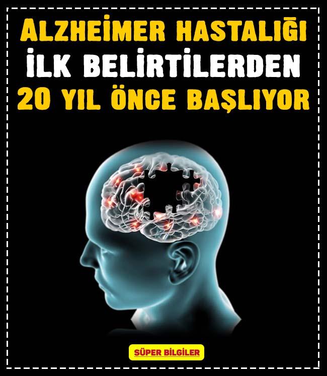 Alzheimer hastalığı ilk belirtilerden 20 yıl önce başlıyor 2