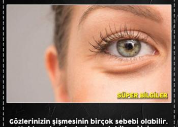 Gözlerinizin Şişmesinin 7 Muhtemel Sebebi 2