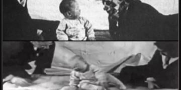 Tarihin Utanç Dolu Deneyi: Küçük Albert'a Ne Oldu? 1