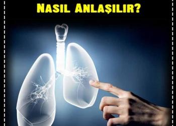 Akciğer Kanserinin İlk Belirtileri Nelerdir, Nasıl Anlaşılır? 2