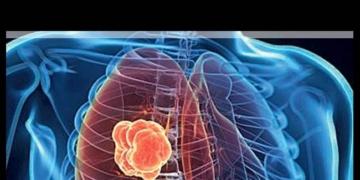 Akciğer Kanserinin Sinsi Belirtileri Bilinmesi Gerekenler 2