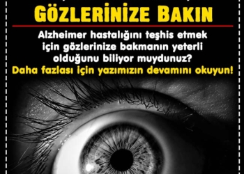 Alzheimer Hastalığını Teşhis Etmek İçin Gözlerinize Bakın 3
