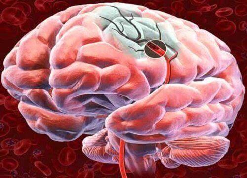 Beyne Giden Kan Akışını Arttırmanın 5 Yolu