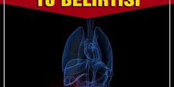 Böbrek rahatsızlıklarının 10 belirtisi 1