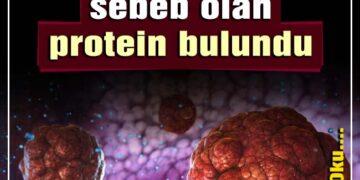 Tümörün daha fazla büyümesine sebeb olan protein bulundu 2