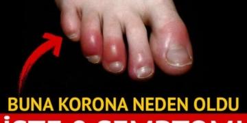 Koronavirüsün cildinizde neden olabileceği 8 semptom 3