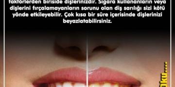 Diş Beyazlatmanın Pratik Yolları