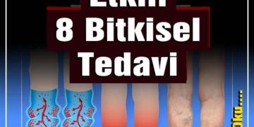 Varise Karşı Etkili 8 Bitkisel Tedavi 2