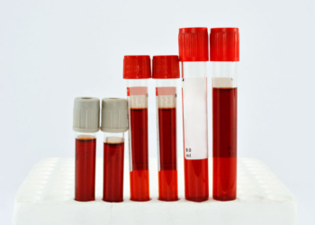beyaz kan eksikliginin belirtileri nelerdir dxxpi1xf.jpg