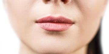 dudak cevresi kirisikligi neden olur fezsgd3d.jpg