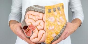 gecirgen bagirsak sendromu belirtileri nelerdir iste tedavisi ootcksrv.jpg
