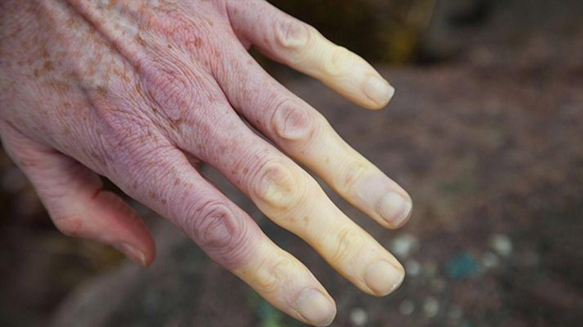 kelebek hastaligi lupus nedir belirtileri neler nasil tedavi edilir upsf3og4.jpg