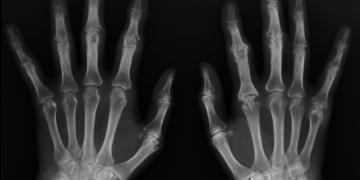 kemik yasi nedir nasil hesaplanir kemik yasi olcumune hangi bolum bakar 6xcey78n.jpg