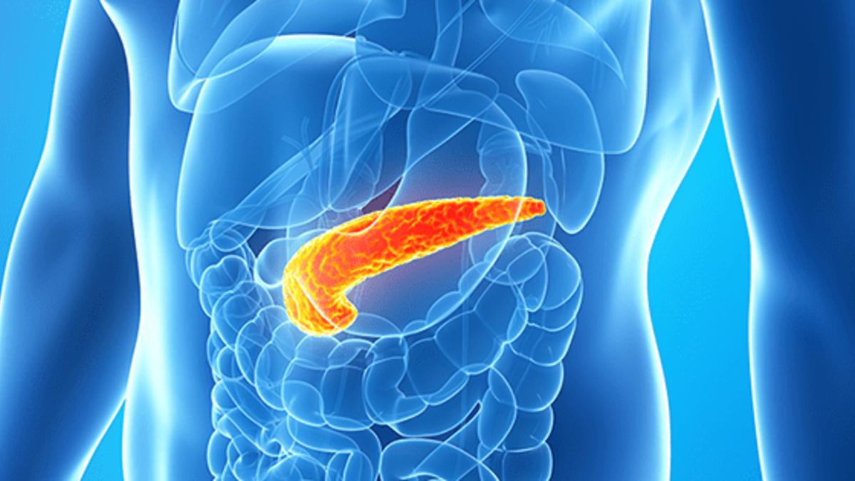 pankreas kanseri neden olur iste belirtileri beovh5bv.jpg